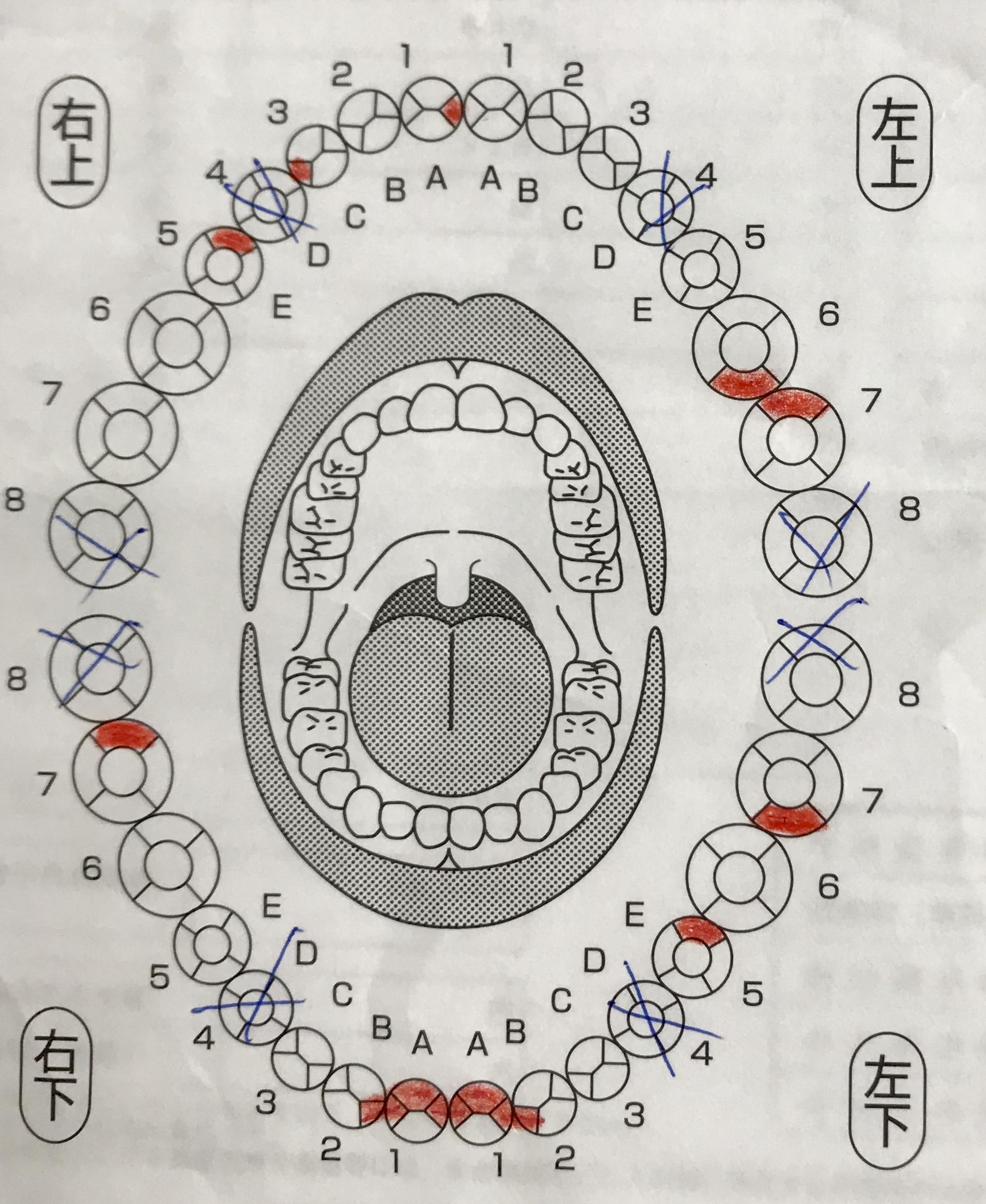 歯医者さんの検診